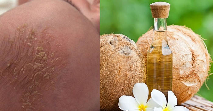 Trị cứt trâu bằng dầu dừa