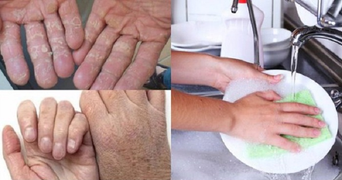 Da tay bị khô rát, ngứa ngáy do sử dụng chất tẩy rửa hóa học