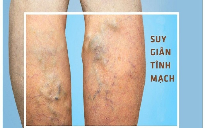 Giãn tĩnh mạch thường xuất hiện ở chân