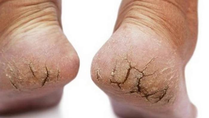 Biểu hiện của nứt gót chân