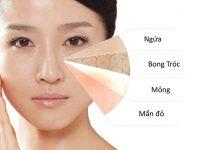 Những tác hại của da khô trên mặt